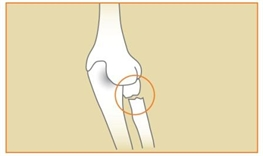 Image related to Elbow Fractures | Houston Fracture Treatment