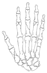 Image related to Hand Fractures | Hand Surgery Houston TX