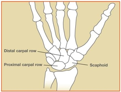 Image related to Scaphoid Fractures | Fractures and Sprains Houston TX
