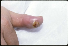 Wound infection of a thumb tip after a human bite