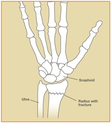 Image related to Wrist Fractures