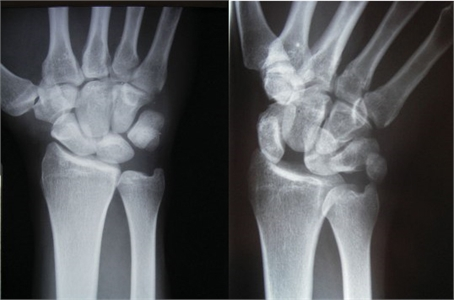 Image related to Wrist Sprains